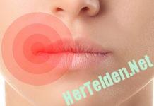 dudak uçuğu hertelden.net