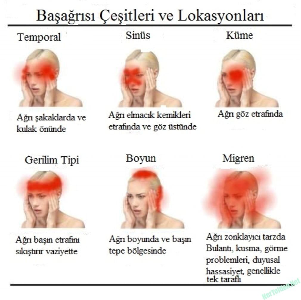Baş ağrısı Çeşitleri Ve Lokasyonları